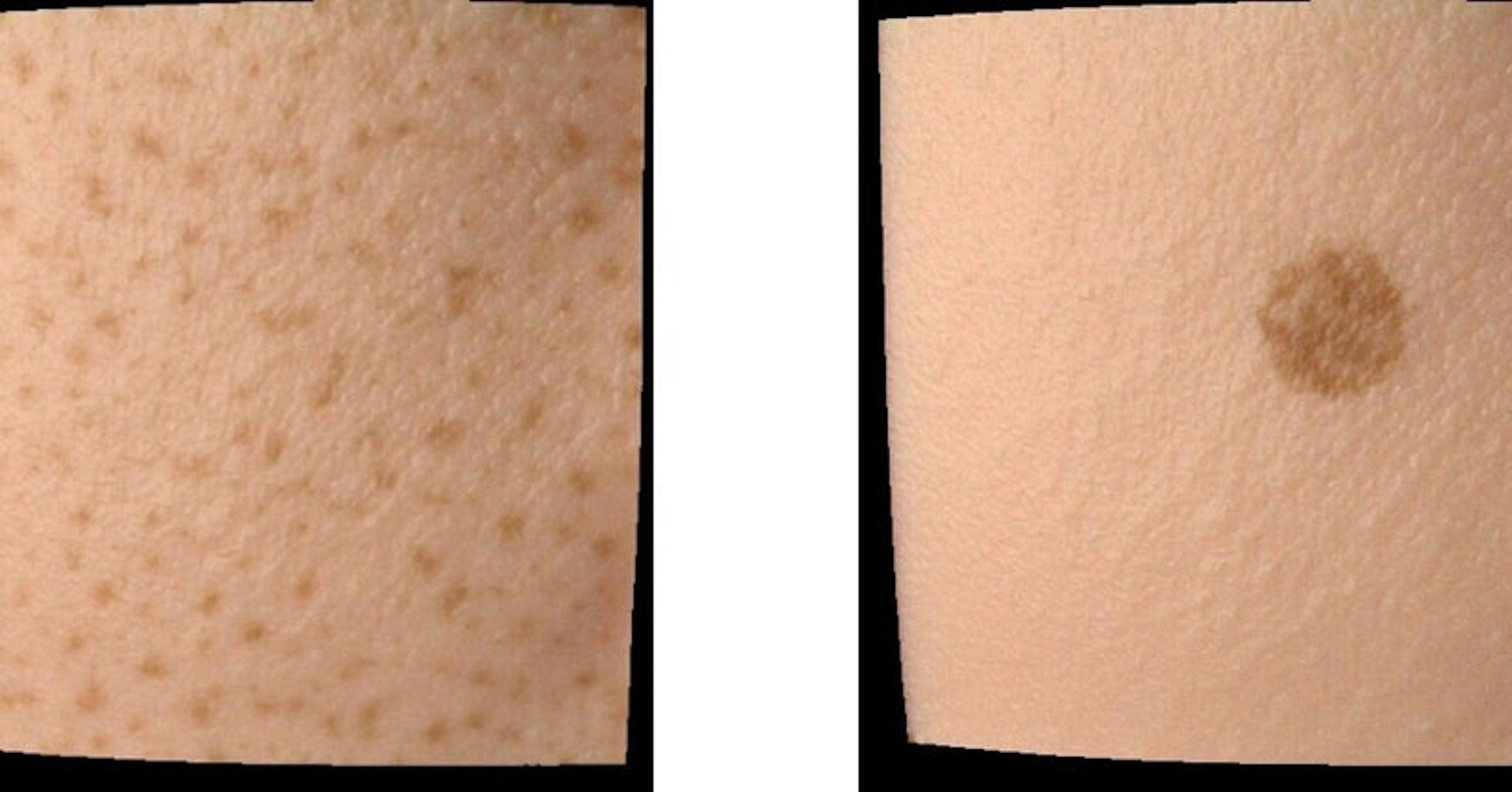 画像: シミュレーションシステムを用いて再現した肌画像の例 (数理モデルを用いて不均一なソバカスやシミを生じさせた)