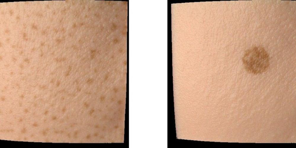 究極の素肌感の実現へ!肌の質感を正確に再現する光学シミュレーションシステムとは?