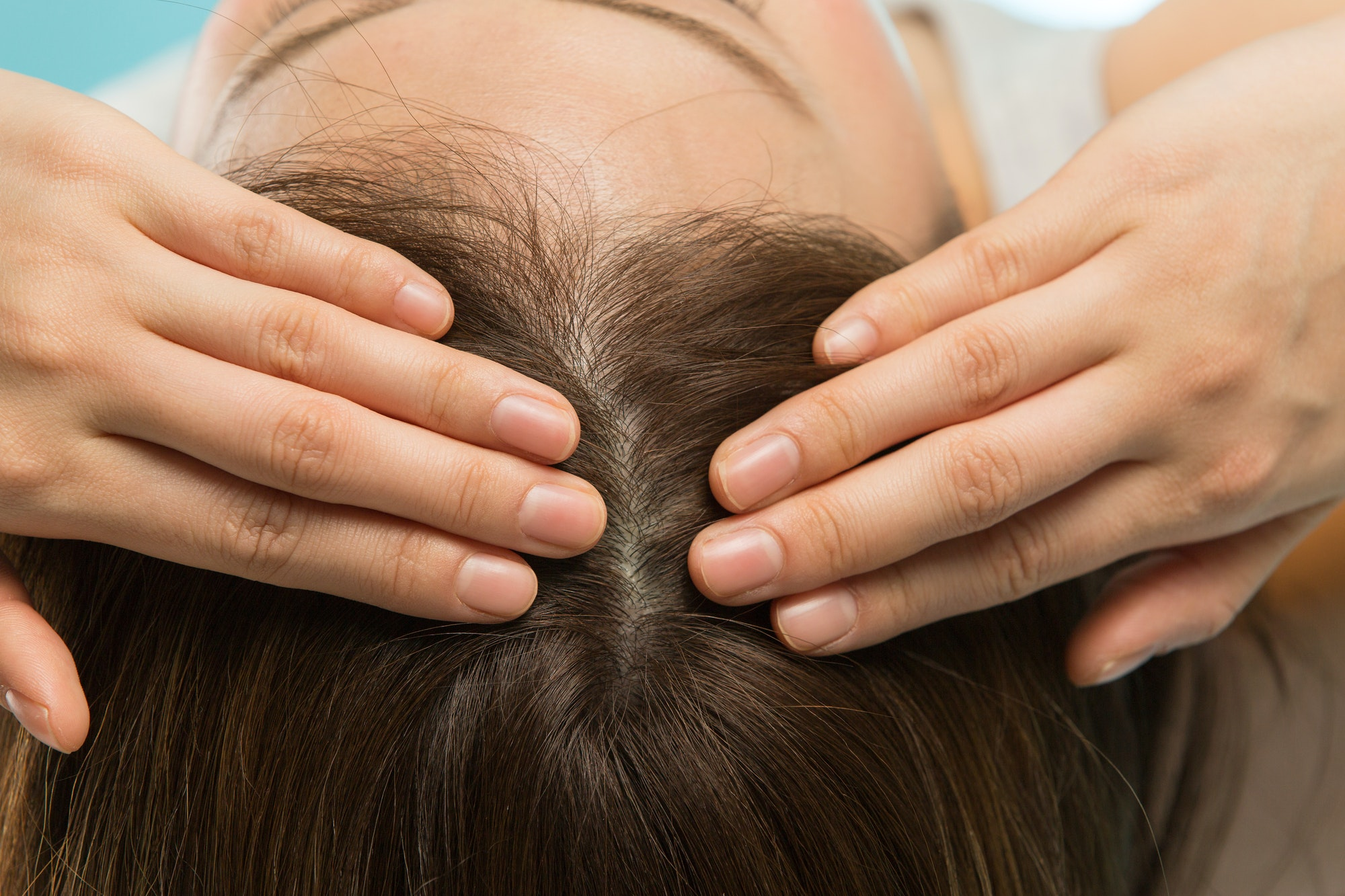 ミノキシジルは女性の薄毛治療にも有効?期待できる効果と注意点