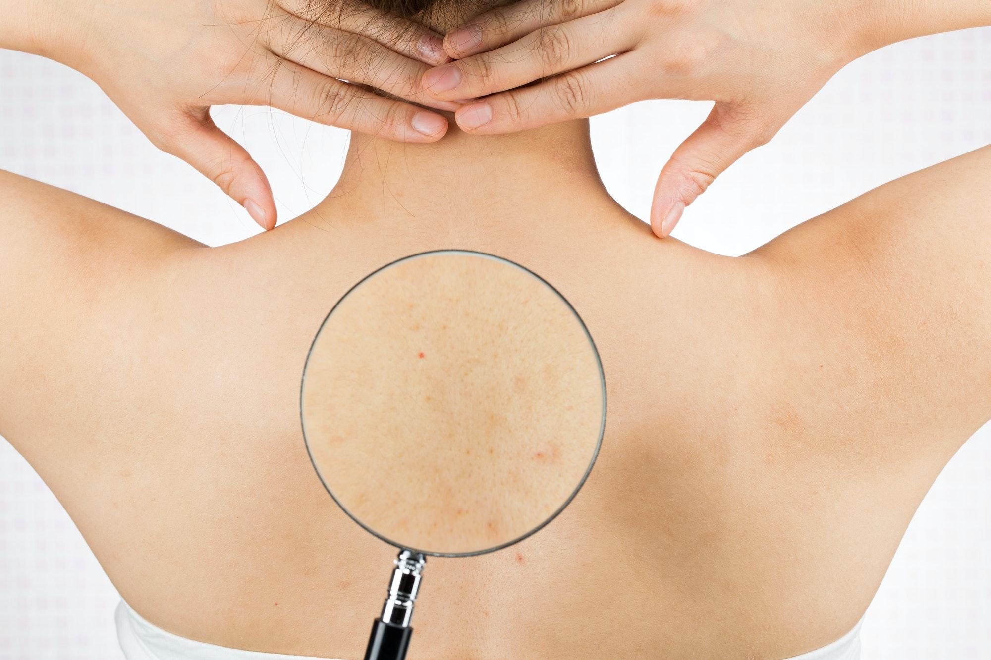 背中ニキビの原因や症状、予防法を解説!ニキビ跡を改善するには